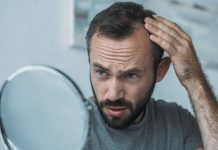 can stress cause hair loss- Can stress cause hair loss and what treatment for it?